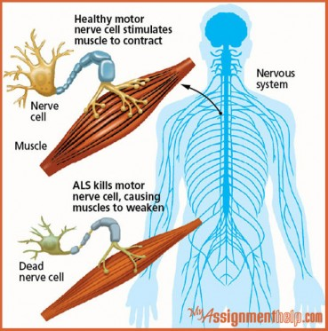 an introduction to the issue of amyotrophic lateral sclerosis or motor neuron disease Amyotrophic lateral sclerosis (als), the most common form of motor neuron disease, is a progressive and devastating disease involving both lower and upper motor neurons, typically following a.