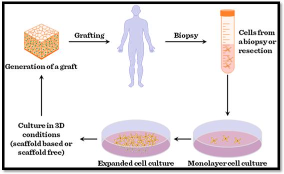 General process of Bone tissue engineering