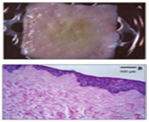 Macroscopic view of co-culture system of Tissue Engineered Oral Mucosa